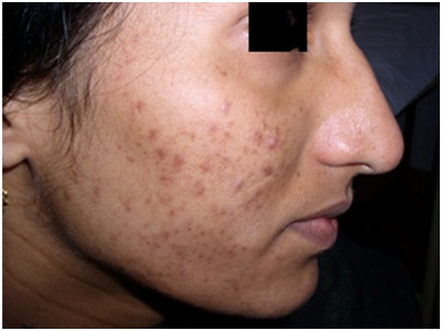 post acne hyperpigmentation #11